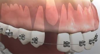Impacted Canine Tooth Surgery
